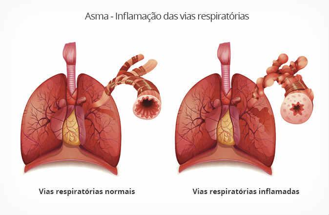Fonte: www.minhavida.com.br